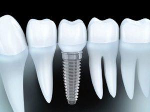 Implantes dentales en Ciudad Lineal y Barrio de Salamanca, Madrid