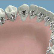 La mejor ortodoncia lingual en Ventas, Madrid